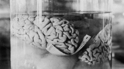 Младеж крадял мозъци и ги продавал в e-Bay