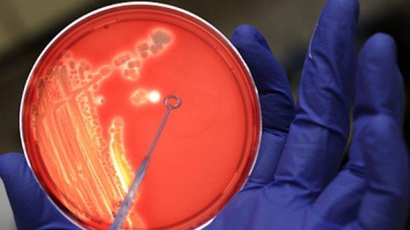 10-те най-смъртоносни заразни болести