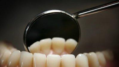 Лекуват левкемия със стволови клетки от зъби