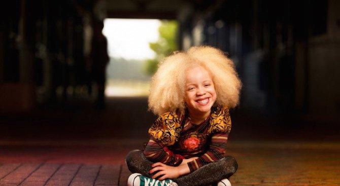 0626200834c Момиченцето албинос, което покори модния свят - Мода - Новини БГ