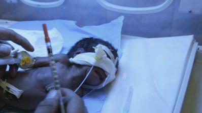 Хиляди бебета са родени с малформации заради противоепилептично лекарство