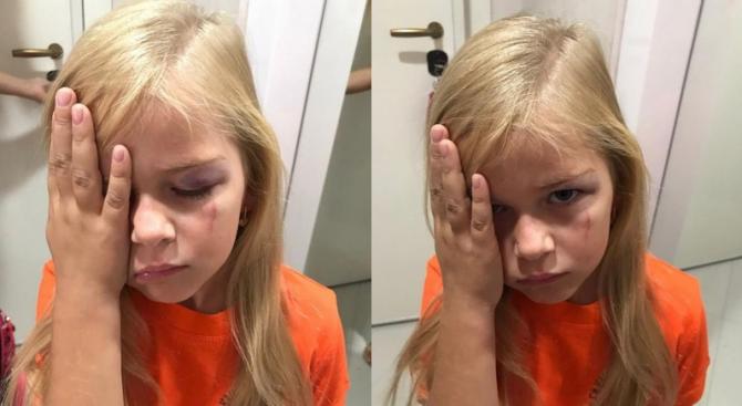 Бариера на паркинг в мол удари дете по главата (видео)