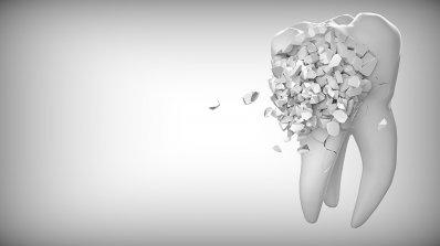Зъболекарите искат закон за оралното здраве, съобщиха потресаващи данни за състоянието на зъбите на