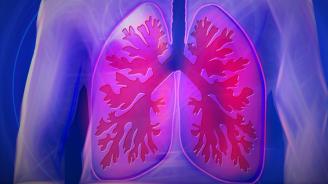 Болестта аспергилоза е опасна за белите дробове