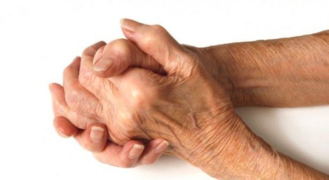 """Семинар за ревматични заболявания организира днес в Русе сдружение """"Асоциация"""