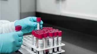 Откриха 240 нови случая с вируса на СПИН