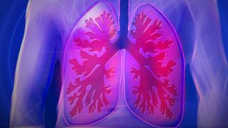 Само половината астматици у нас са диагностицирани, смята алерголог
