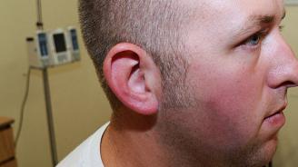 Лекари извадиха от пациент рекордно голямо парче ушна кал