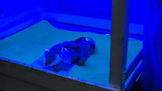 Бебе-русалка се роди в Индия и почина веднага