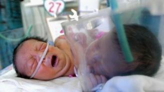 Унгарски лекари разделиха сиамски близначки, свързани в главите