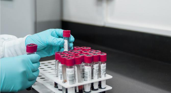 На 15 август националната референтна лаборатория по предавани с кърлежи