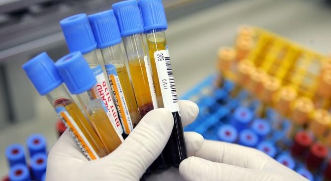 Девет нови случая с носители на вируса на ХИВ са