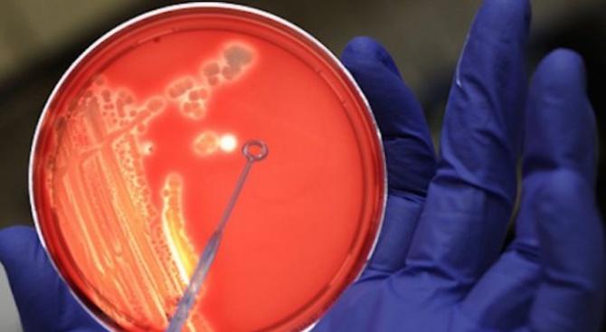 Два случая на хеморагична треска с бъбречен синдром са регистрирани