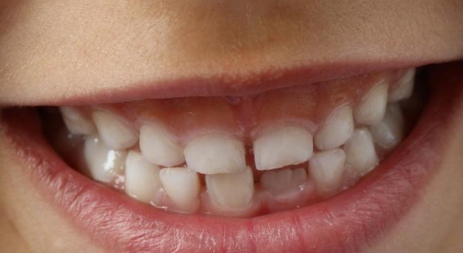 Първолаци учиха как да пазят зъбките си