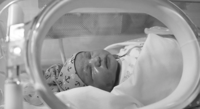Оперират сърцето на една от сиамските близначки, разделени във Франция