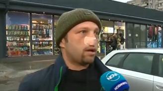 Мъж се оказа с отхапан нос след сбиване на пътя