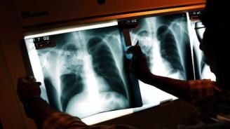 Онколог: 4250 годишно се разболяват от рак на белия дроб в България