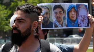 Чилийци, изгубили очите си по време на протестите, се събраха на демонстрация в Сантяго