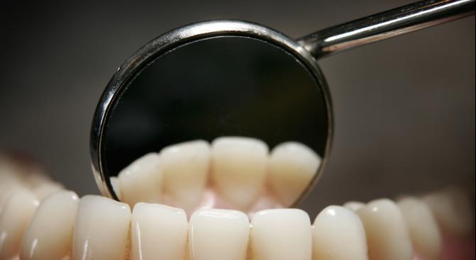 Изтриването на зъбите – скритият враг на красивата усмивка