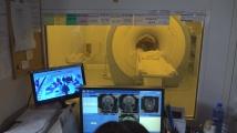 Нов метод за лечение на епилепсия представиха в УМБАЛ ''Св. Иван Рилски''